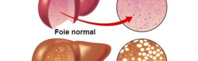 maladie du foie